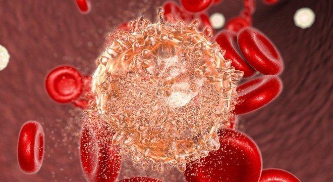 A leucemia linfoblástica (ou linfoide) aguda afeta cerca de 300 mil crianças por ano no mundo todo