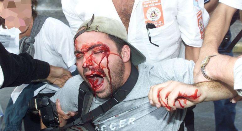 Alex Silveira é socorrido logo após ser atingido por bala de borracha