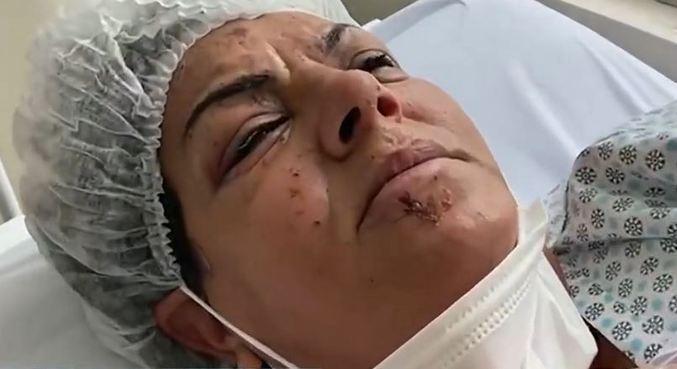 Edileuza ficou ferida e internada por nove dias em hospital