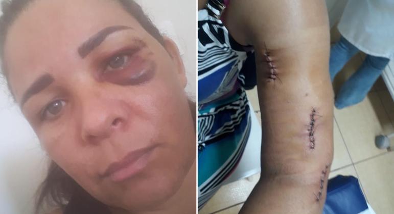 Mulher foi espancada dentro de padaria em SP após pedir para o cliente usar a máscara