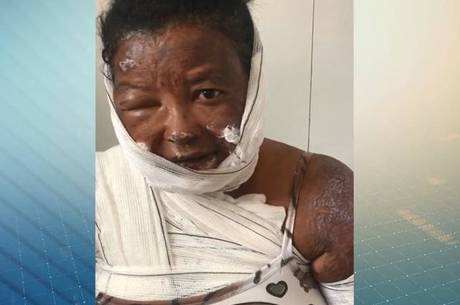 Imagens mostram a vítima machucada pelas queimadas