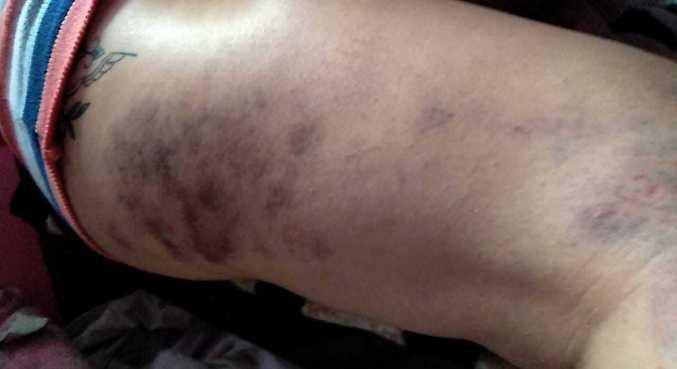 Vítima exibe hematomas causados pela agressão durante uma festa