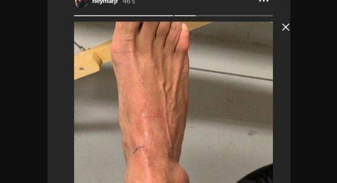 O tornozelo direito inchado por conta do rompimento dos ligamentos