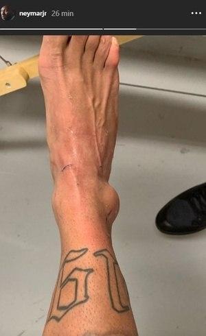 O tornozelo e as tatuagens