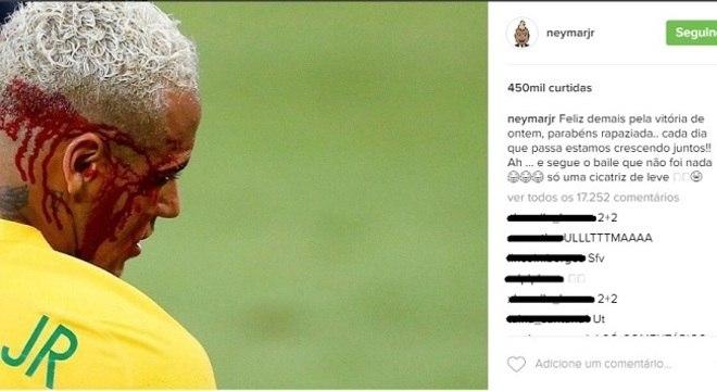 Neymar sangrando contra a fraquíssima Bolívia, eliminatórias. Fundamental?