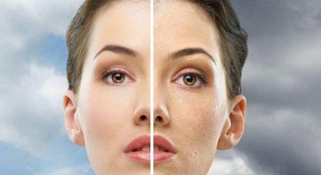 Niacinamida- Benefícios, o que é e qual sua importância para a pele
