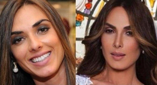 Nicole antes e depois : nariz e bochechas chamam a atenção