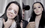 No início de 2020, Maiara colocou prótese de silicone nos seios e Maraisa chocou ao mostrar o rosto completamente roxo, resultado do pós-operatório de uma rinoplastia