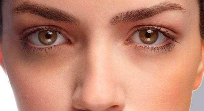 Olheiras: O que é, como tratar e evitar