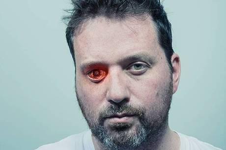 Canadense usa prótese que foilma no lugar de olho