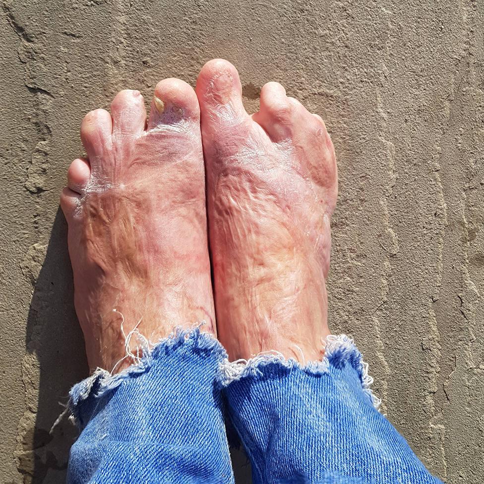 Os pés de Laura