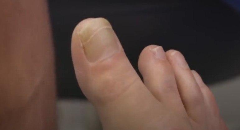 Paciente chocou cirurgião especializado em pés com um dedão extremamente longo e raro