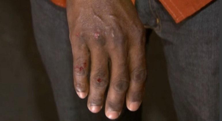 Homem ficou ferido em briga corporal com jovem de 18 anos, em Contagem