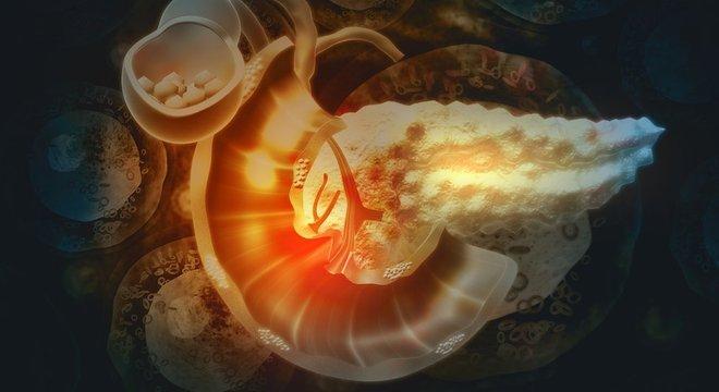 O câncer de pâncreas costuma ser detectado tardiamente