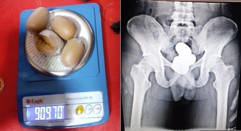 Passageiro foi detido com quase 1 kg de ouro em pasta no reto, em aeroporto indiano