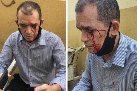 Pastor brasileiro agredido em Angola