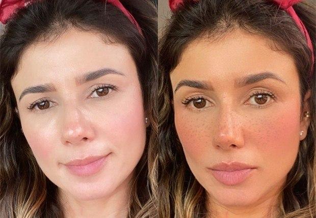 Artista mostrou rosto com e sem filtro