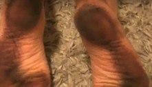 Pesquisador identifica substância misteriosa que suja pés em praia