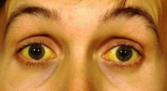 Pele amarelada - principais condições de saúde que provocam a mudança