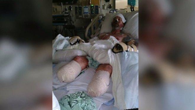 Felizmente, o corpo dele respondeu ao tratamento e seus braços puderam ser salvosNÃO PERCA:Rapaz fez tanto preenchimento labial que uma hora deu errado
