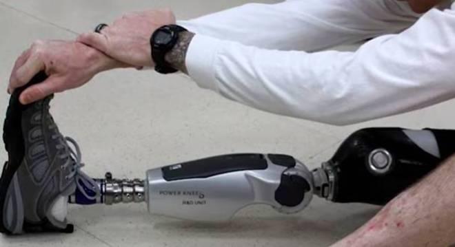 Com sensores utilizados em cirurgia os usuários de próteses podem ter sensações