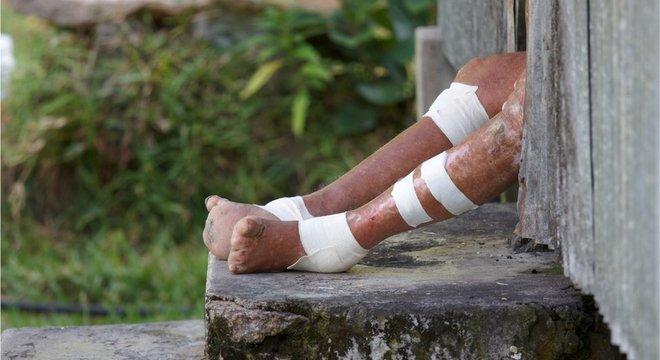 A hanseníase é uma das doenças que atingem milhares de pessoas mas são negligenciadas pela indústria de remédios