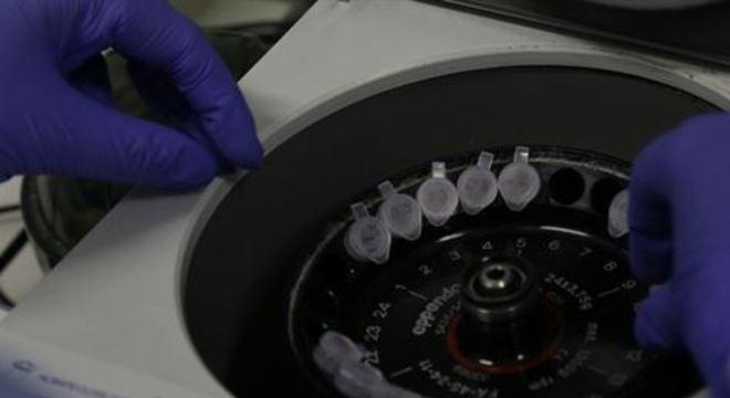 Pesquisadores pretendem identificar linfócitos B para tratar a doença provocada pelo novo coronavírus