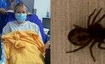 Uma estudante inglesa de 18 anos passou por momentos tenebrosos após ser picada por uma aranha conhecida como falsa-viúva (Steatoda nobilis) durante uma viagem turística, em um parque da região de Gales