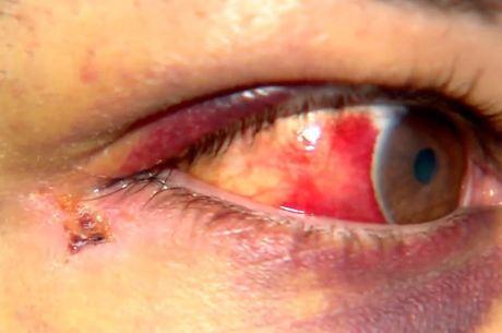Pizzaiolo foi agredido por policiais militares