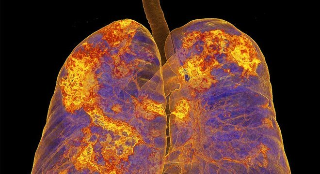 Imagem dos pulmões de uma pessoa infectada mostra áreas com pneumonia