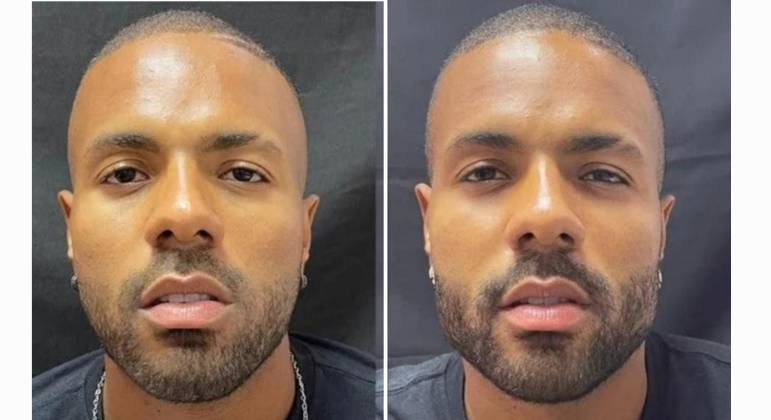 Polidoro Júnior mostra antes e depois de procedimento estético