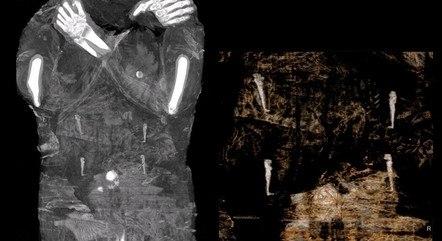 Raio-X revelou um feto no ventre da múmia