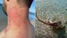 Polvo em modo de ataque desce o tentáculo no pescoço de banhista