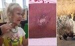 Porco-espinho resiste bravamente a 90 minutos de ataques de leopardo. Adolescente injeta mercúrio na veia em tentativa de se tornar X-men.Garotinha leva picada de serpente no rosto durante visita a zoológico.A seguir, os conteúdos mais lidos doHORA 7na última semana!