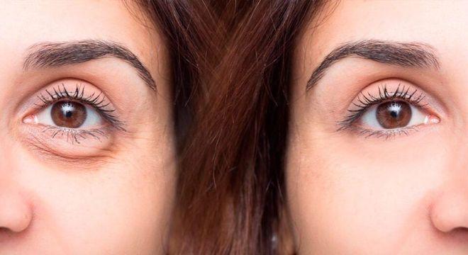 Preenchimento de olheiras- rotina de cuitados+ tendências de tratamento