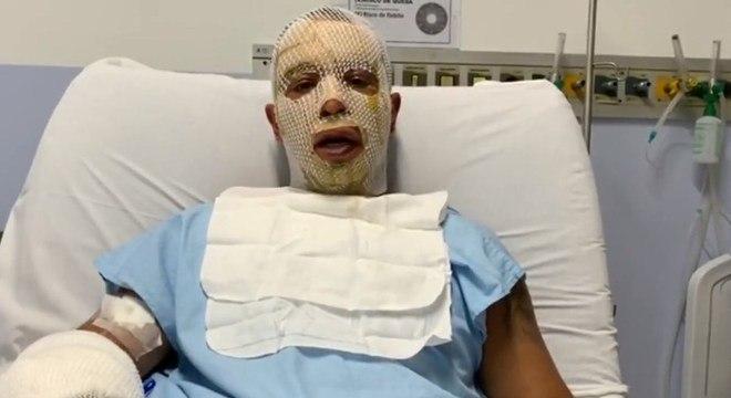 Rogério Lins, prefeito de Osasco, sofreu queimaduras de 1º e 2º graus
