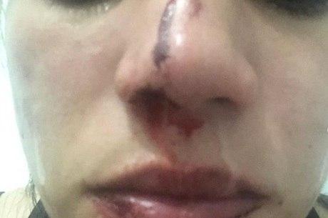 Natália disse que foi atingida no nariz pelo ex