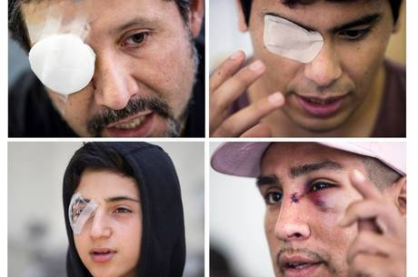 Pelos menos 460 pessoas perderam a visão em 3 meses