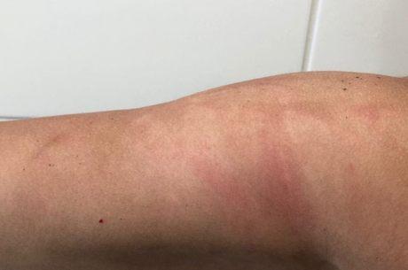 A má aplicação do filtro solar pode deixar a pele manchada
