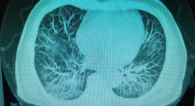Áreas esbranquiçadas (na parte de baixo) estão comprometidas pela pneumonia