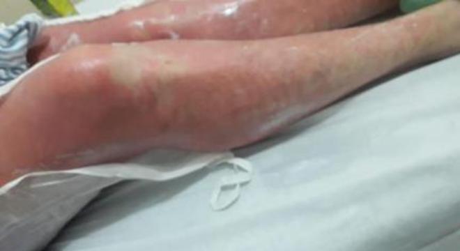 Queimadura Folha de Figo