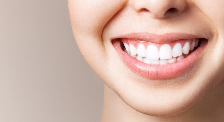 Quem possui dentes amarelados pode optar pelo uso de clareadores dentais.