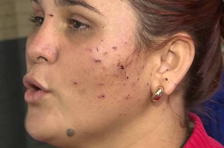 Roseane ficou com ferimentos no rosto