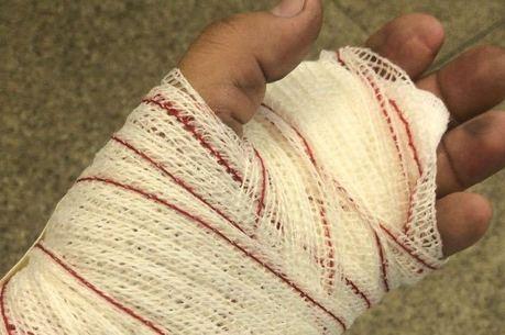 Homem se feriu na mão após pane de armamento
