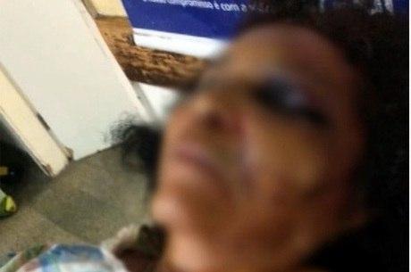 Idosa chegou ao hospital com hematomas em todo corpo