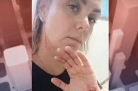 Ana Paula mostrou agressões nas redes sociais
