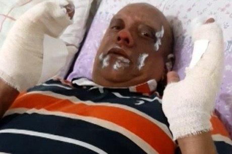 Mestre ficou com ferimentos na mão e no rosto