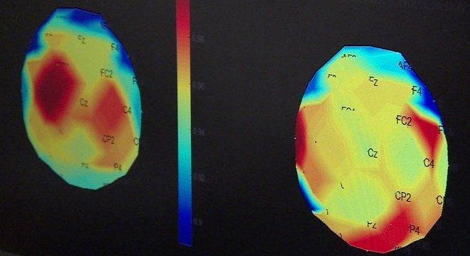 Partes do cérebro responsáveis pelos movimentos (em vermelho na imagem da esquerda) não estavam funcionando adequadamente. Após três meses de tratamento, essas regiões foram reativadas