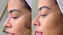 Aos 25 anos, Rafaella Santos refaz botox e dá repaginada no visual