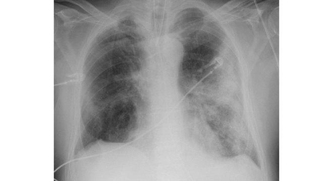 Raio-X de um homem de 68 anos mostra sintomas graves da covid-19. As áreas brancas mostram a inflamação dos alvéolos, que provoca dificuldade de respiração